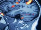 Tragbarer nichtinvasiver Gehirnscanner zu Erkennung von Schlaganfällen