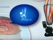 Bionik: Wenn Prothesen wie echte Glieder reagieren