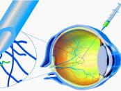 Nanoroboter im Auge: Richtung der Retina steuern